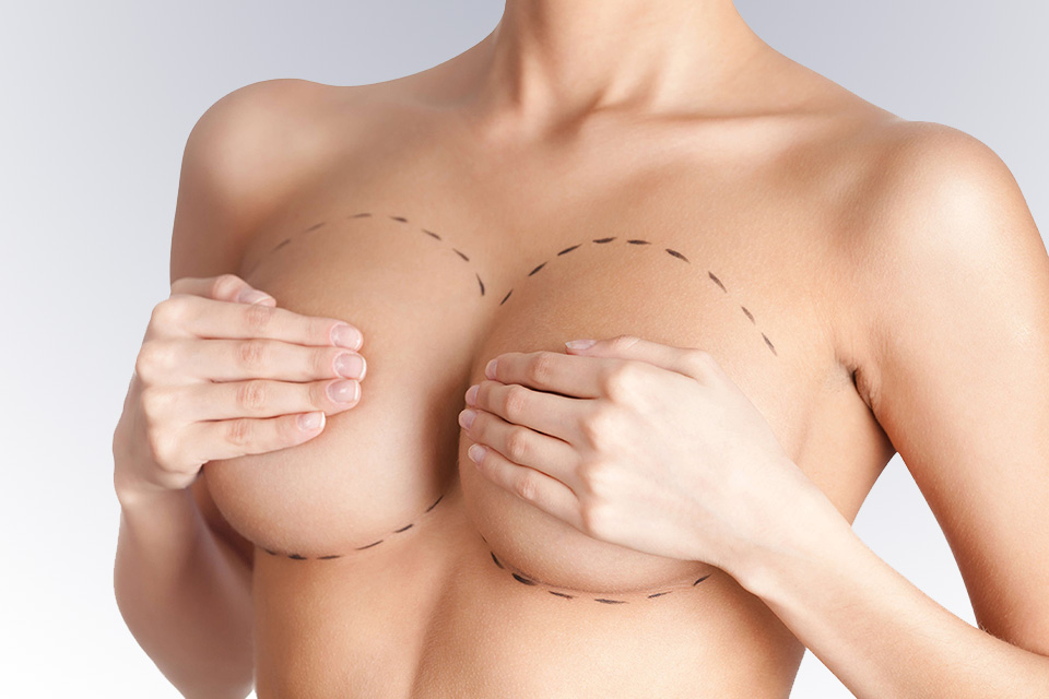 breast lift aeshetic surgery
